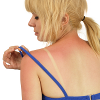 Woman with sunburn