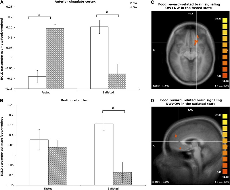 Brain scans - food and weight