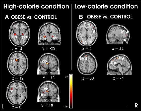 Brain scans - weight 2