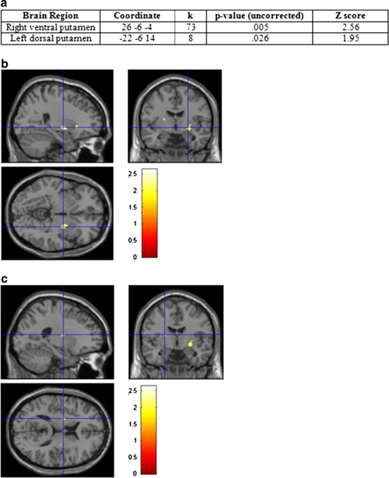 Brain scans - food and weight 3